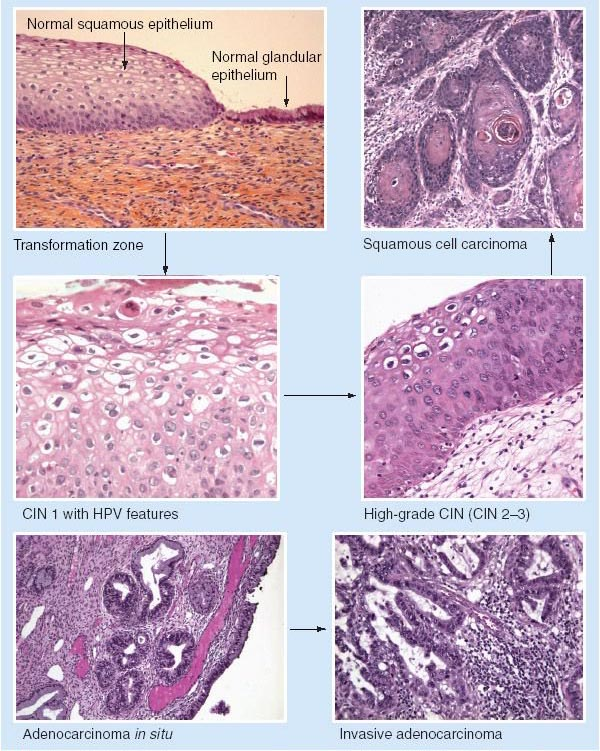hpv squamous cell skin cancer