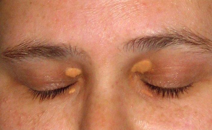 Xanthelasma: Causes, Symptoms and Treatment