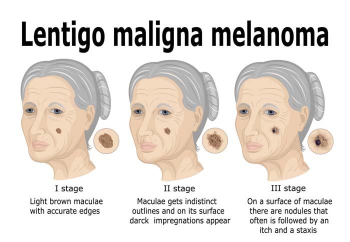 Lentigo Maligna and Lentigo Maligna Melanoma: Causes
