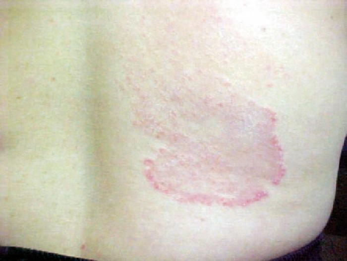 Tinea Corporis – Causes, Symptoms and Treatment